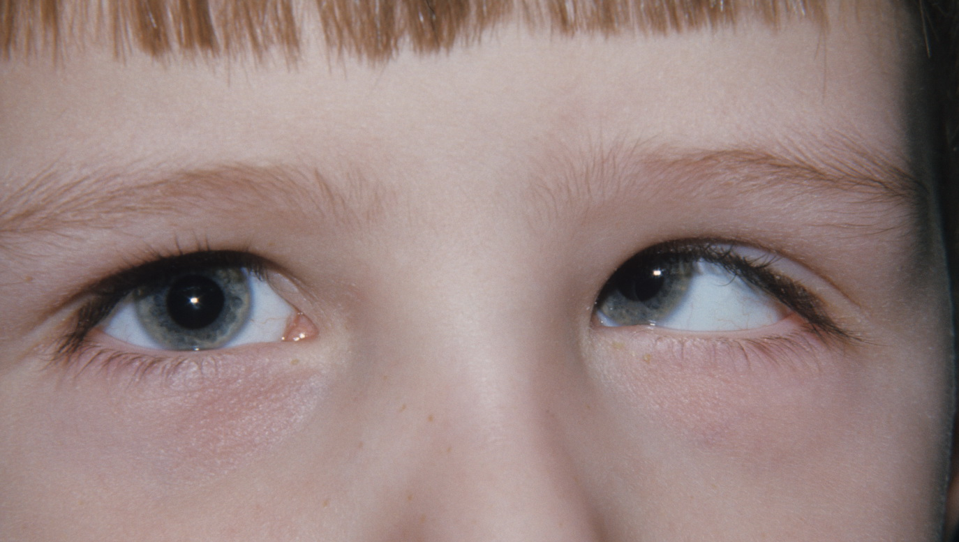 Right gaze in Duane syndrome showing limitation of right eye abduction and left eye hyperdeviation.