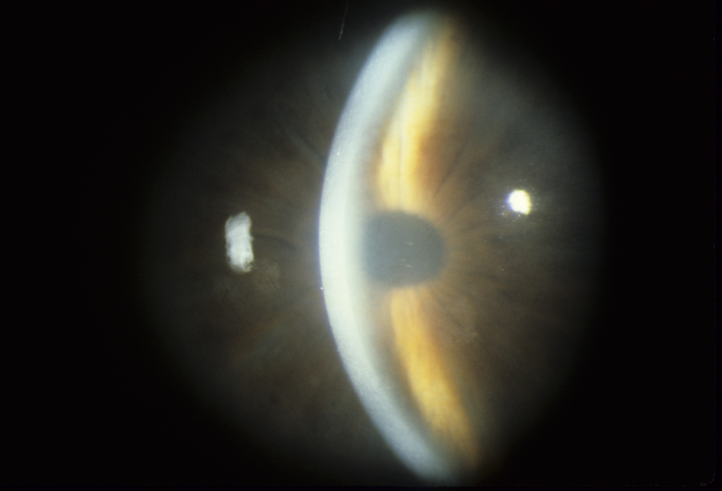 Edema of the cornea