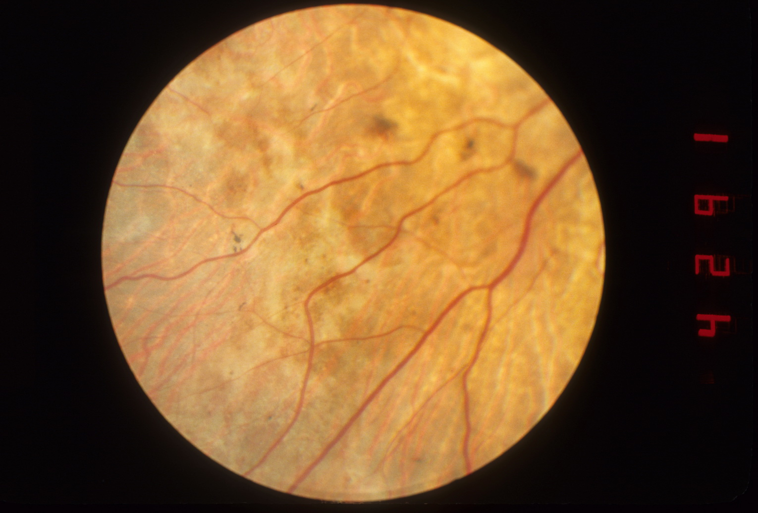 Fundus photograph of choroideremia