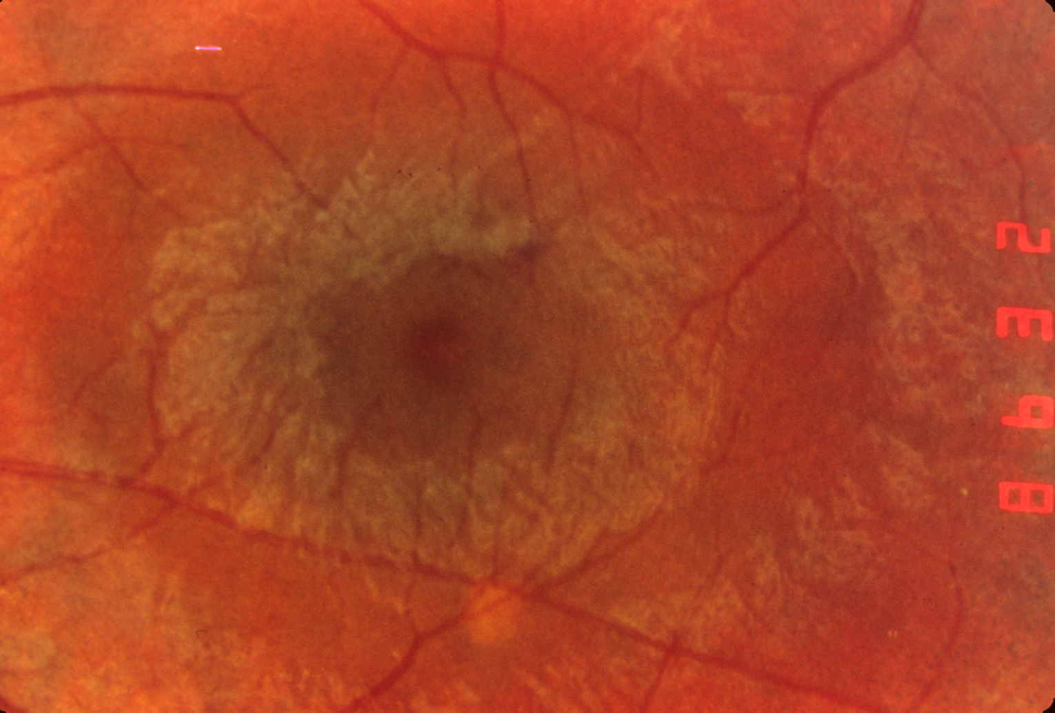 Macula in Usher syndrome