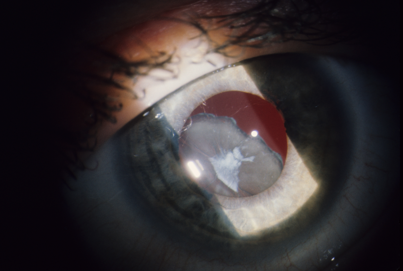 Dislocated, cataractous lens in Marfan syndrome