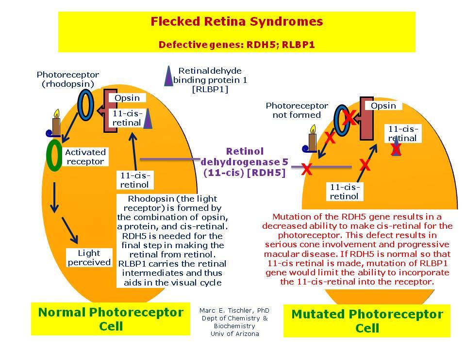 Flecked%20Retina%20Syndromes.jpg