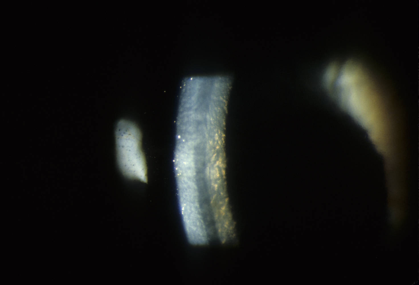 Slit lamp view of corneal guttae in Fuchs corneal dystrophy