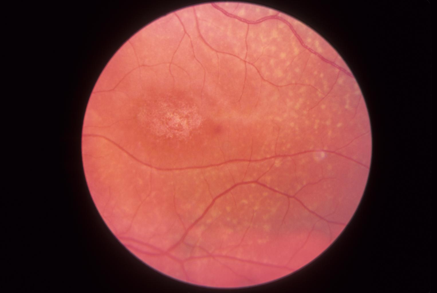 Fundus view of Stargardt disease