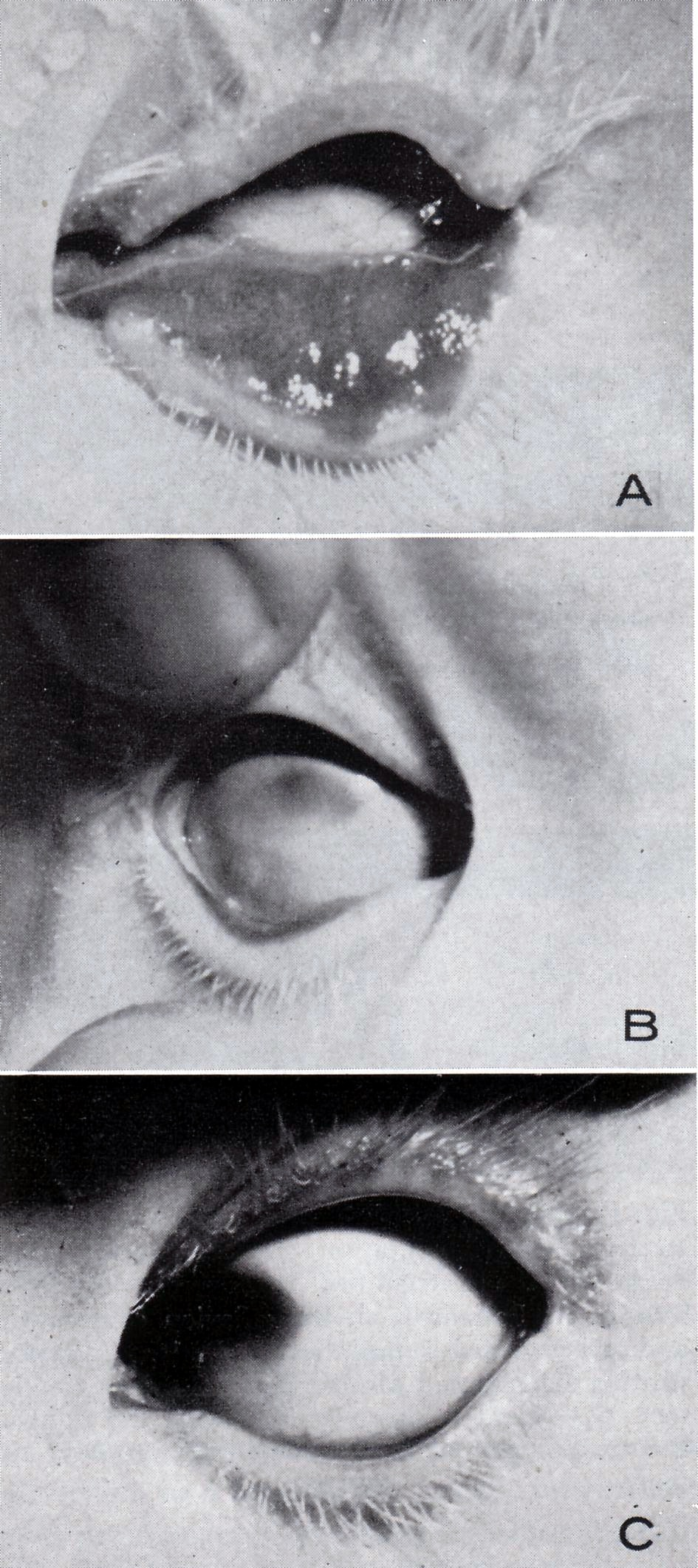 Oculocerebral syndrome with hypopigmentation in 3 individuals