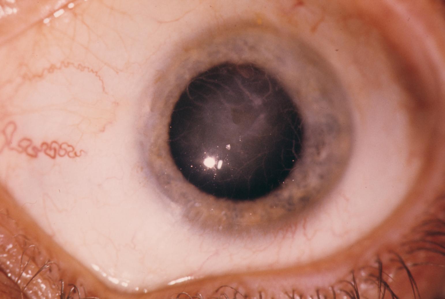 Lattice dystrophy of the cornea