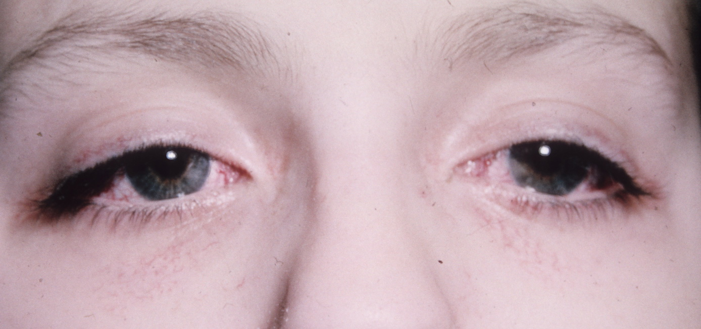 Ataxia-Telangiectasia | Hereditary Ocular Diseases