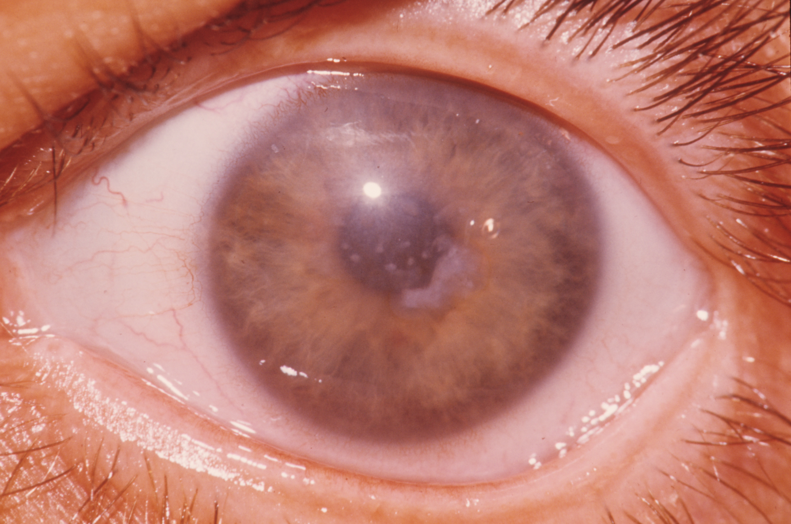 Cloudy cornea in macular dystrophy of the cornea