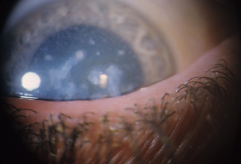 Macular corneal dystrophy