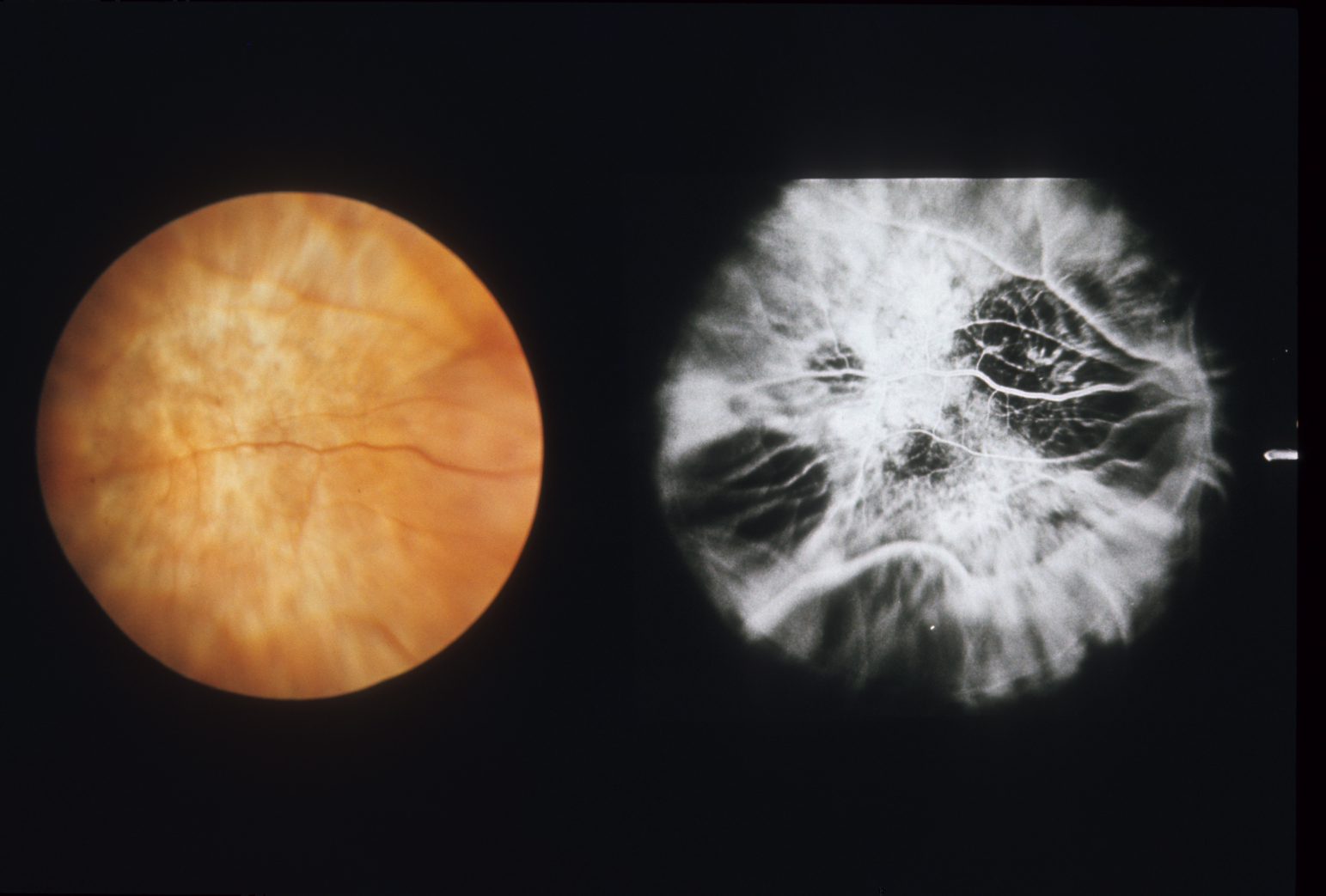 Fluorescein angiogram and fundus in nanophthalmos