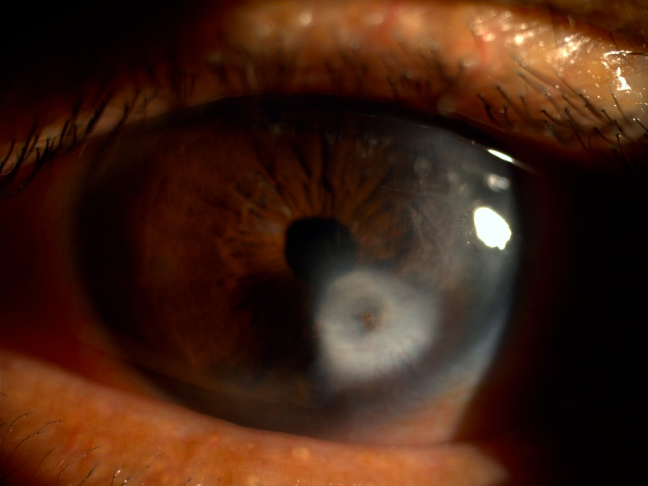 Corneal scar in Peters Anomaly