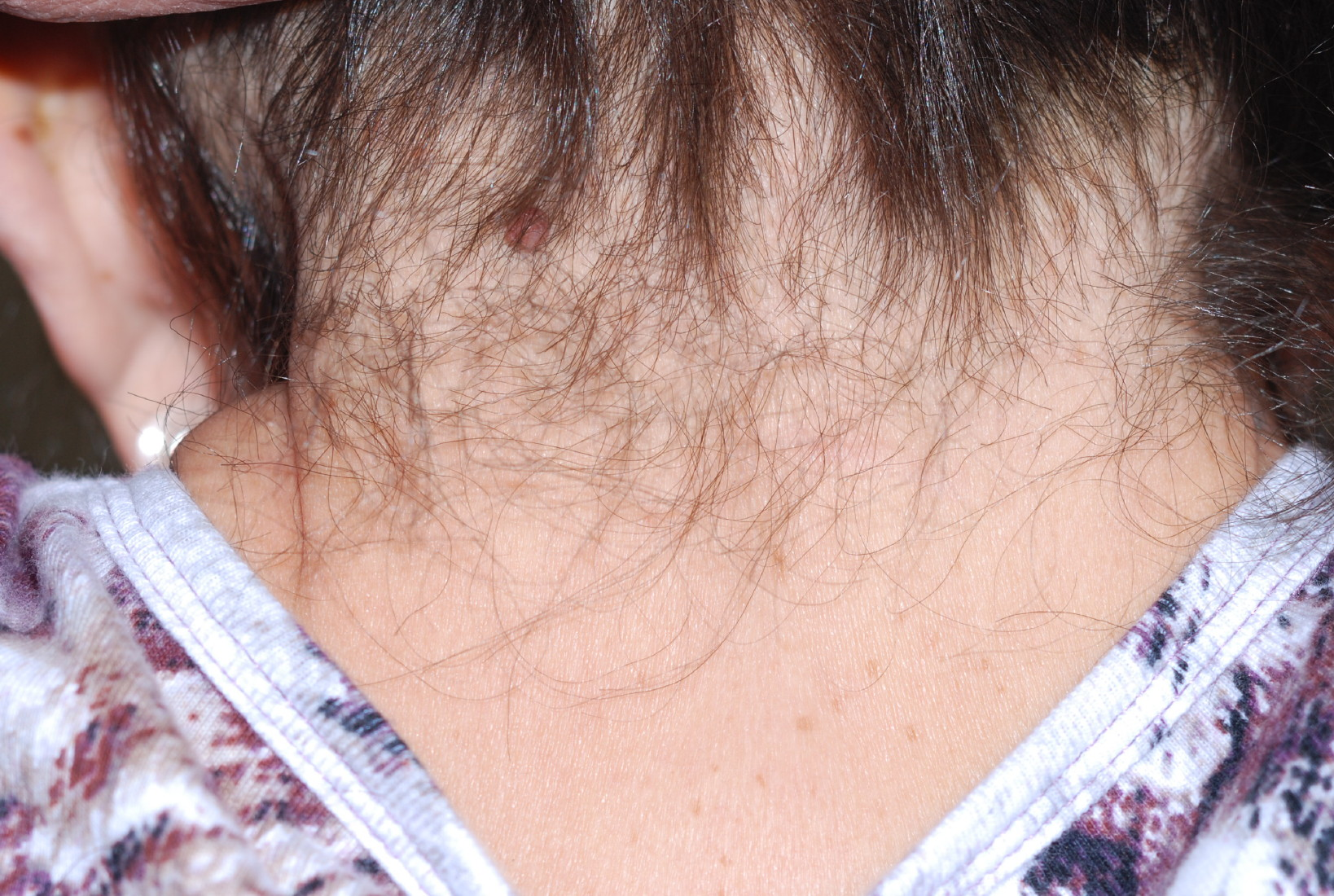 Posterior neck view of female with Noonan syndrome