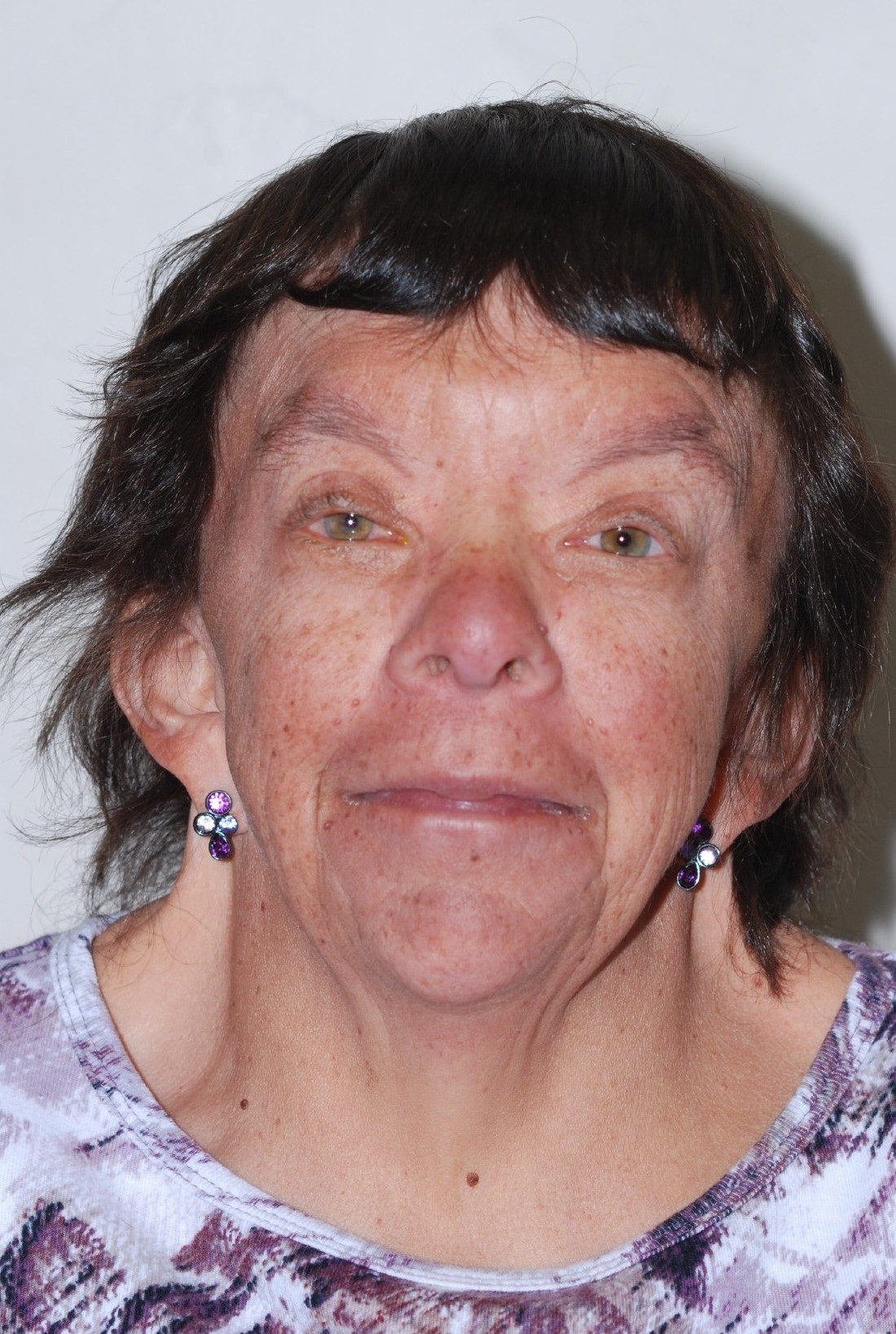Facial view of 63 yo with Noonan syndrome.