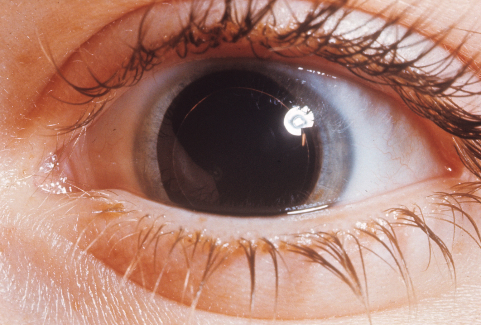 Dilated pupil in Weill-Marchisani syndrome showing small diameter lens