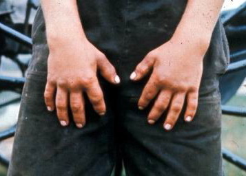 Photograph of short hand digits in Weill-Marchesani