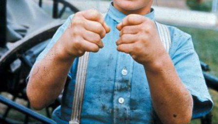 Short, stiff digits restrict clenching of fists in Weill-Marchesani syndrome