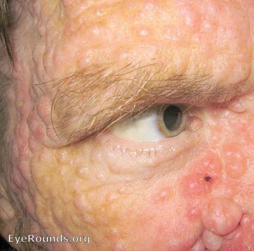 Facial growths in neurofibromatosis