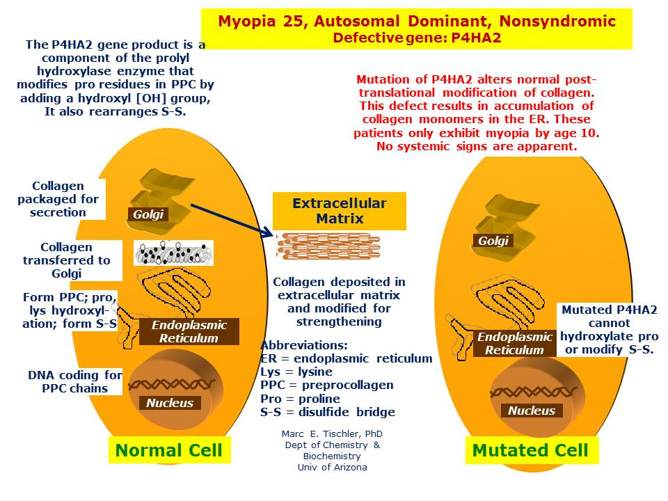 The gene product of P4HA2 when defective  results in accumulation of collagen monomers resulting in abnormal eye growth.