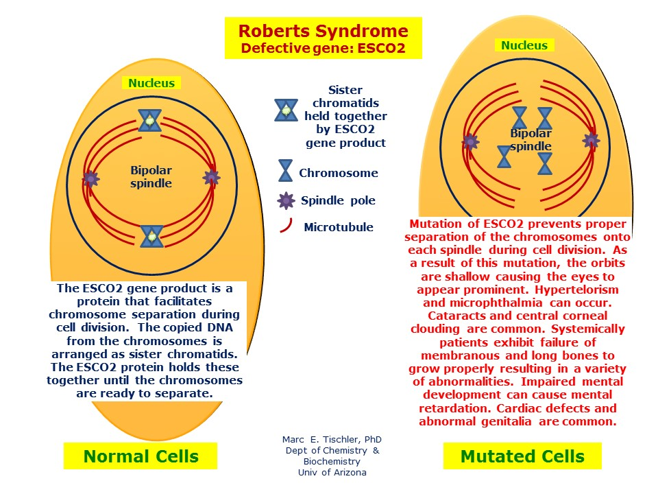 Roberts Syndrome | Hereditary Ocular Diseases
