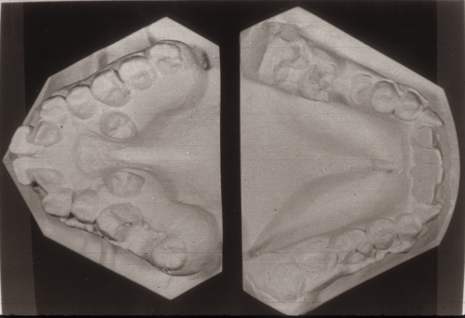 Dental cast of teeth in Crouzon Syndrome