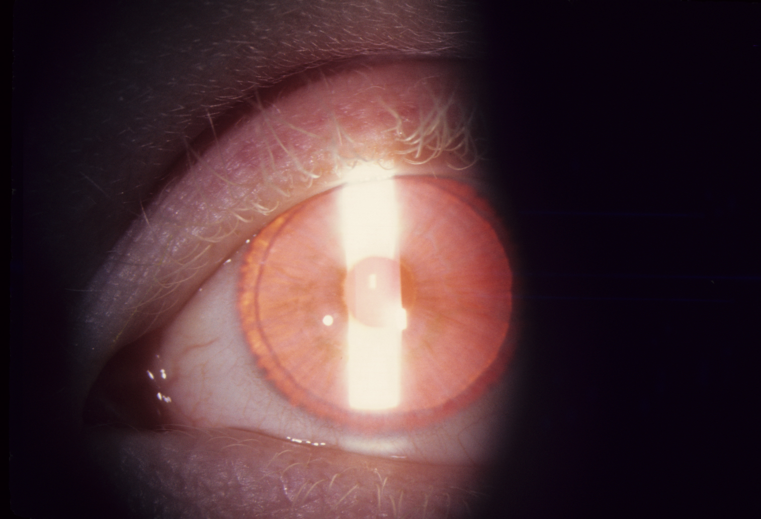Eye and lashes in type IA oculocutaneous albinism