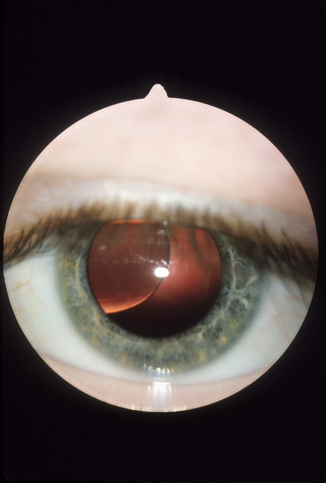Dislocation of lens in homocystinuria