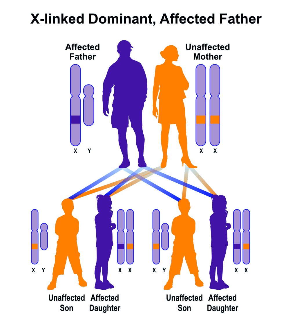 Sanple pedigree of X-linked dominant inheritance, father affected