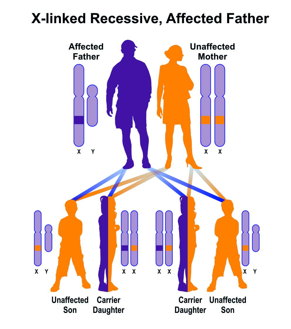 Sample pedigree of X-linked recessive inheritance, father affected