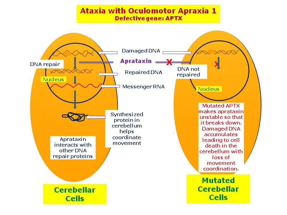 ataxia vs apraxia