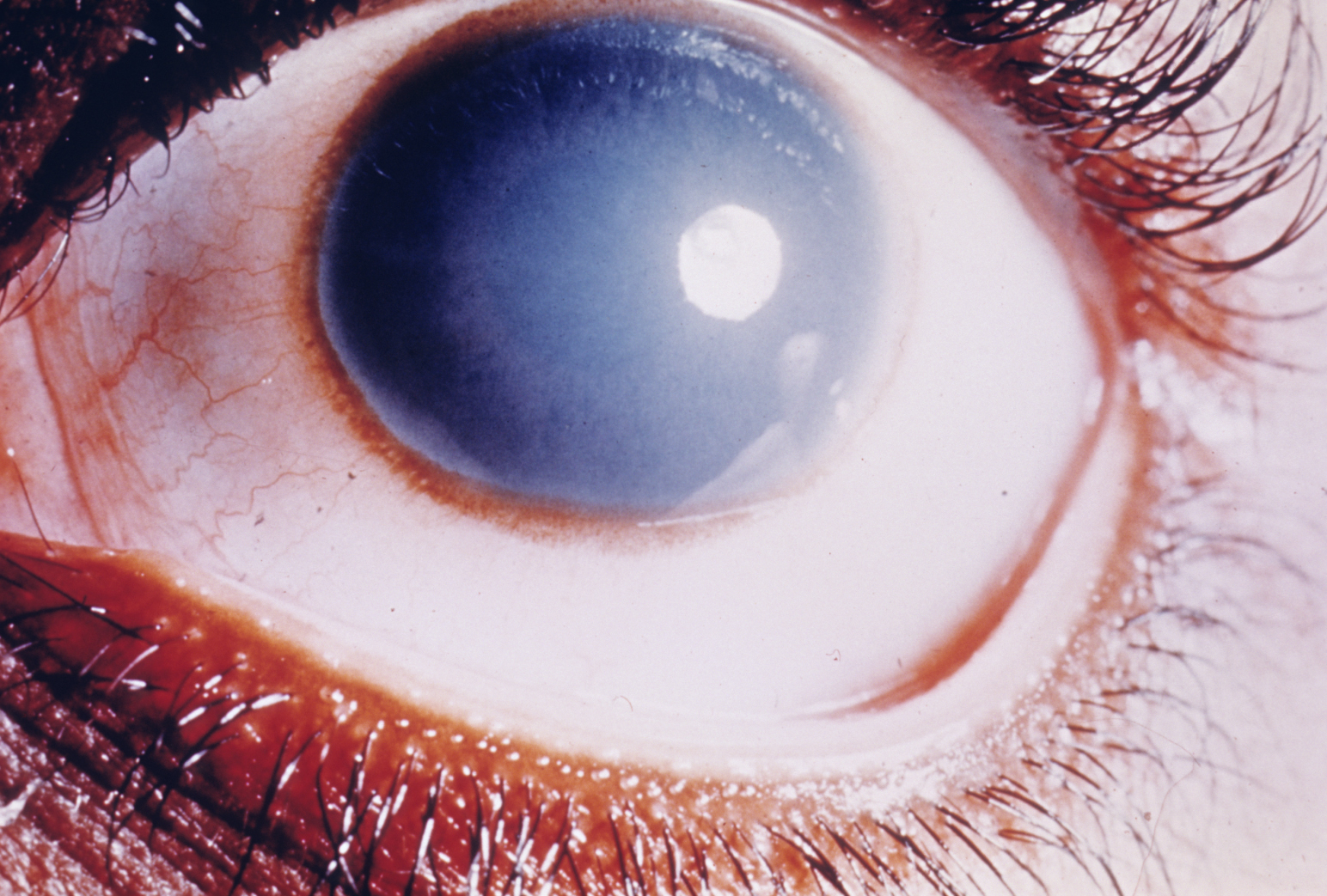 Cloudy cornea in congenital hereditary endothelial dystrophy of the cornea