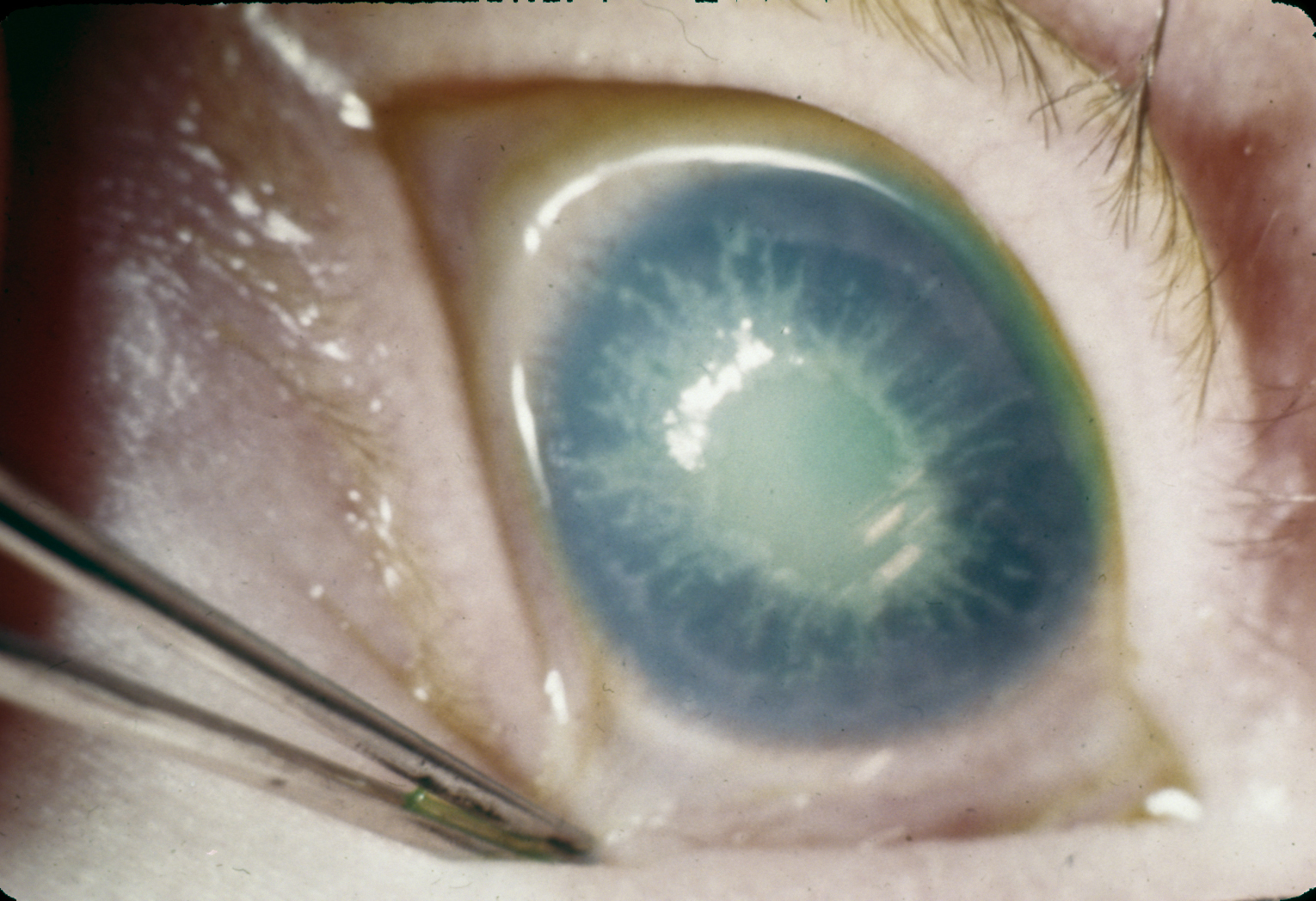 Corneal opacities in tyrosinemia