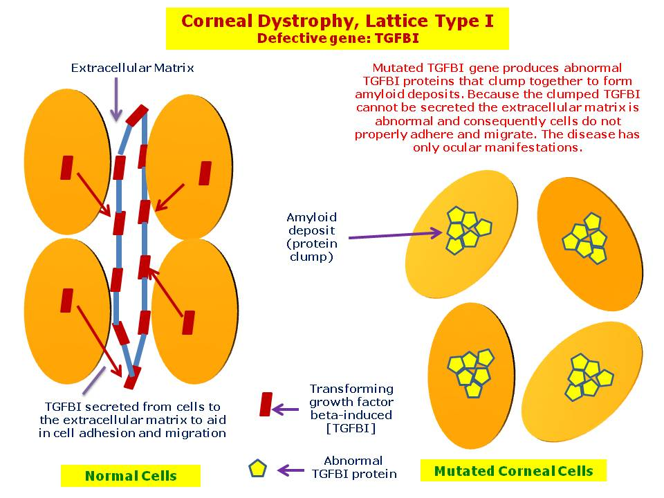 Lattice type I corneal dystrophy results from deposition of abnormal proteins (amyloid) in the cornea