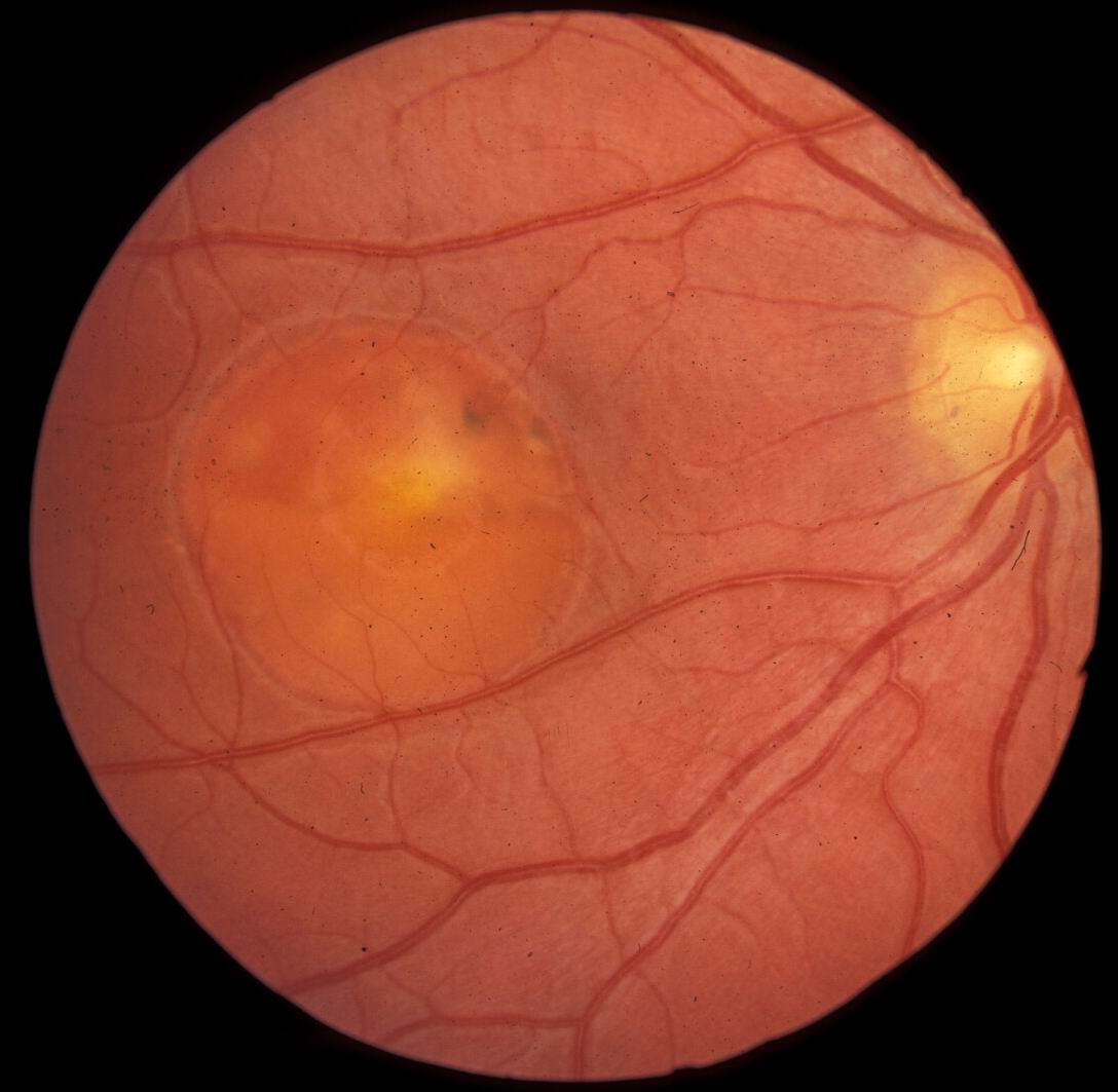 macular dystrophy retina - photo #6