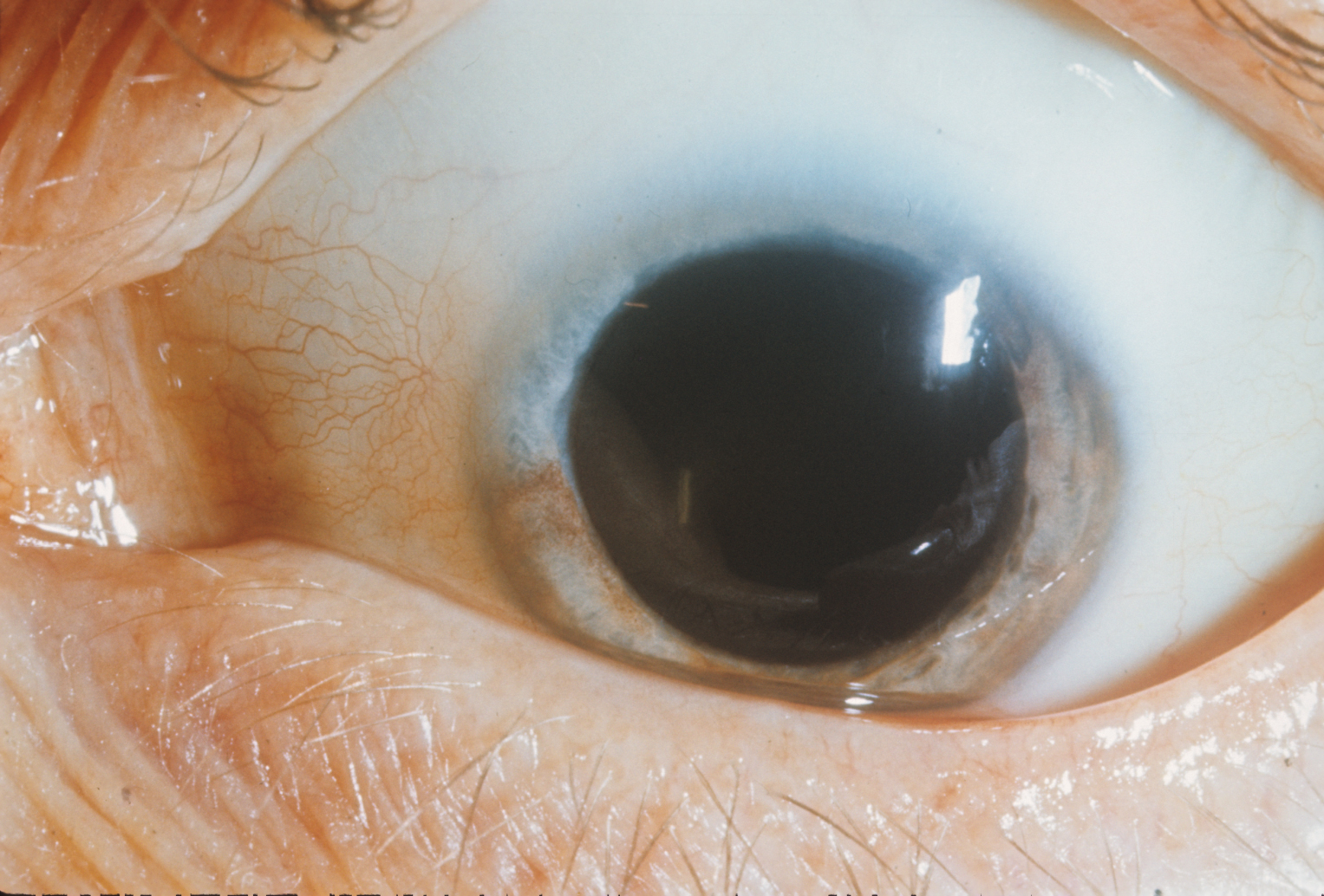 Waardenburg Syndrome Type 1 Hereditary Ocular Diseases
