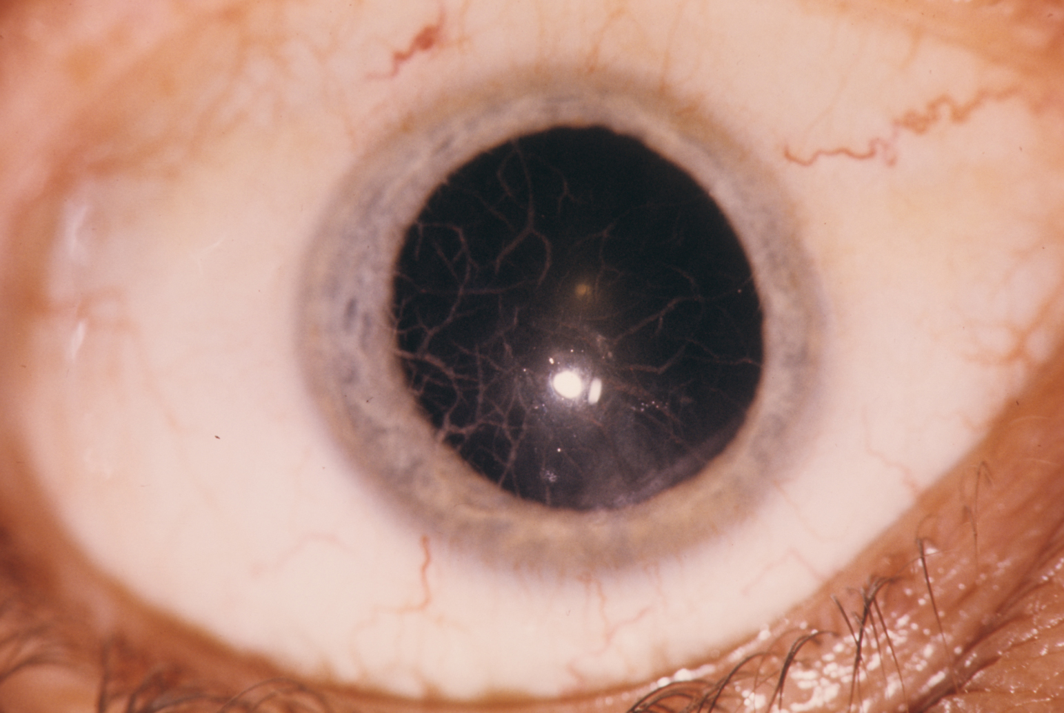 Lattice dystrophy of the cornea