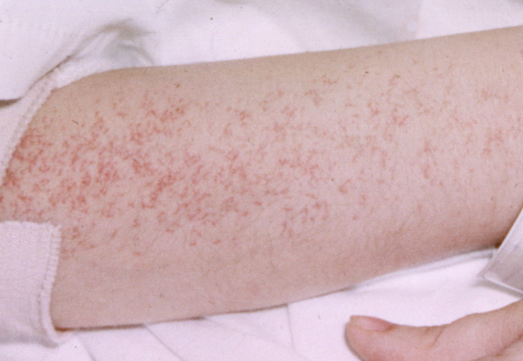 Telangiectases on forearm