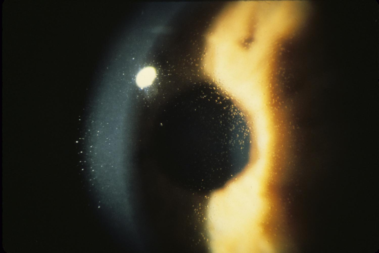 Cornea in Meesman corneal dsytrophy