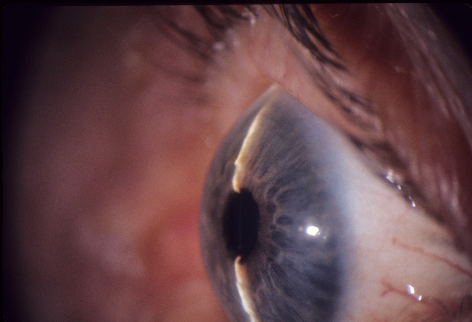 Shallow anterior chamber in nanophthalmos