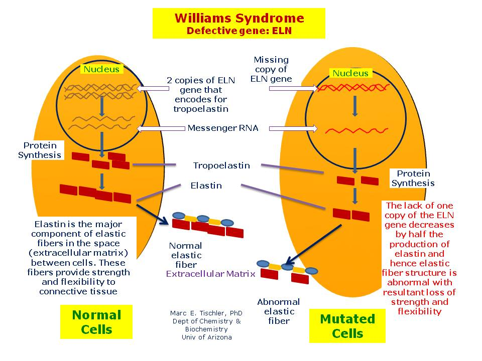 williams syndrome What is williams syndrome williams syndrome is a developmental disorder caused by a microdeletion on the long arm of chromosome 7 this deletion encompasses ~25.