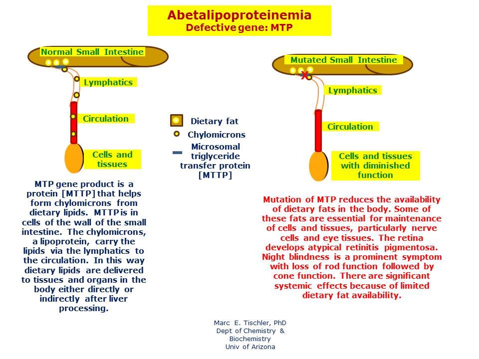Abetalipoproteinemia | Hereditary Ocular Diseases
