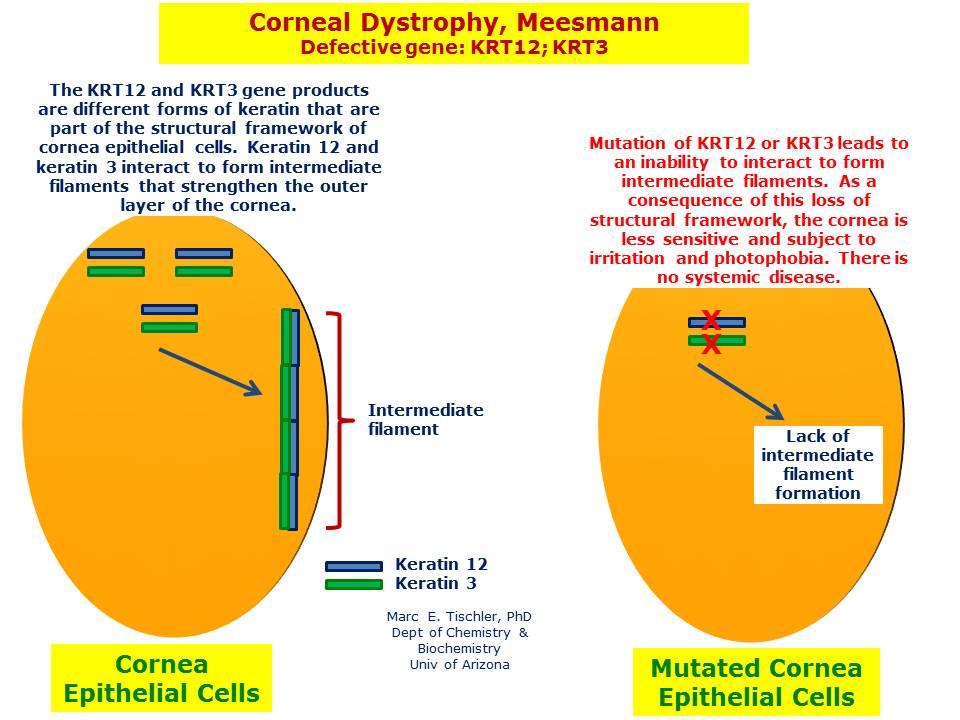 meesmann corneal dystrophy wwwimgkidcom the image