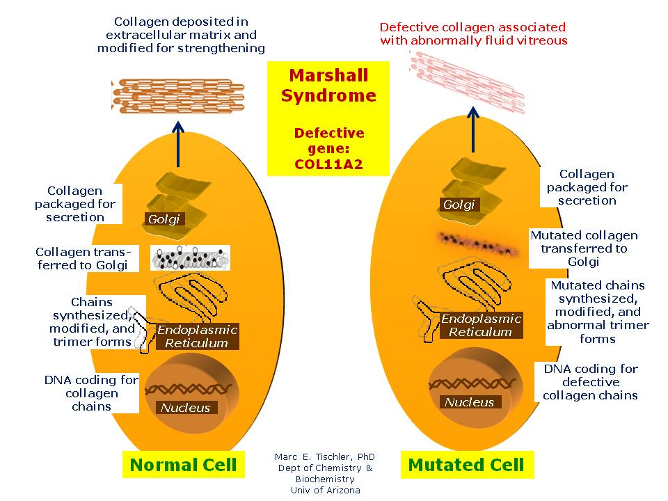 Marshall Syndrome on emaze