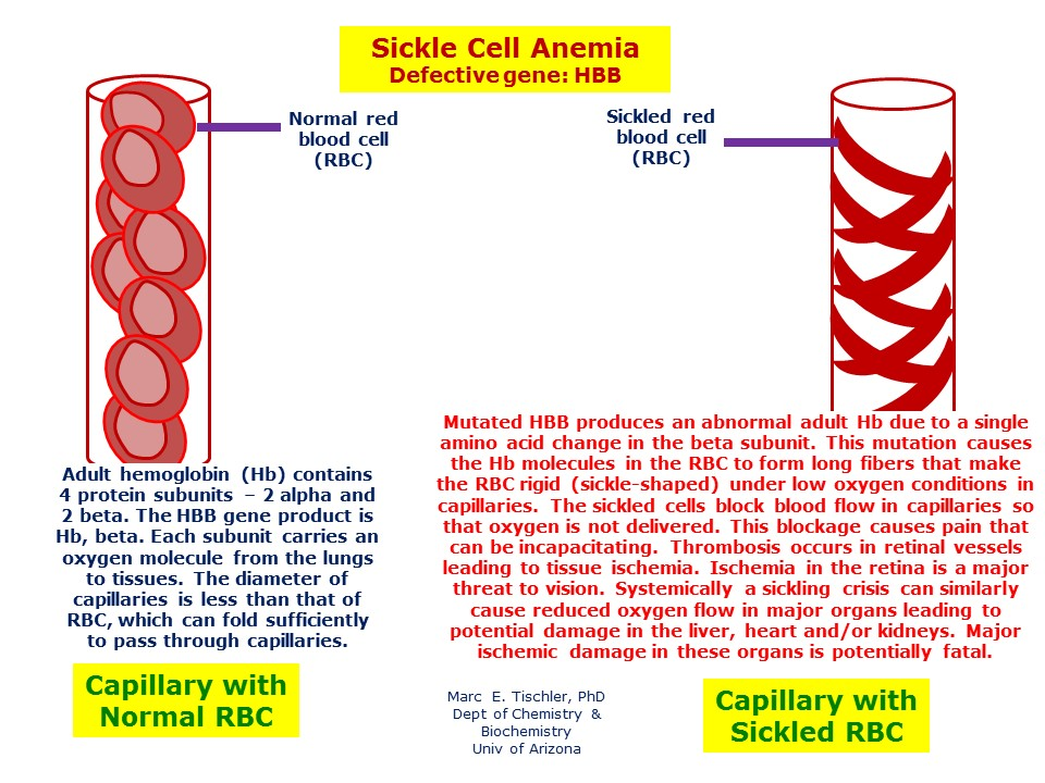 sickle cell disease essay