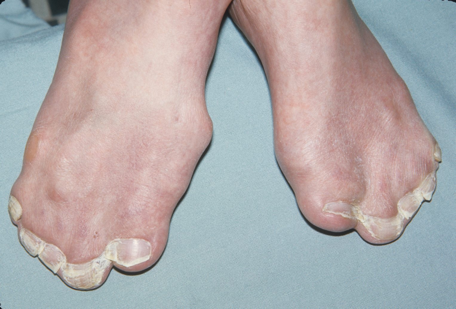 Fusion of toes in Apert syndrome