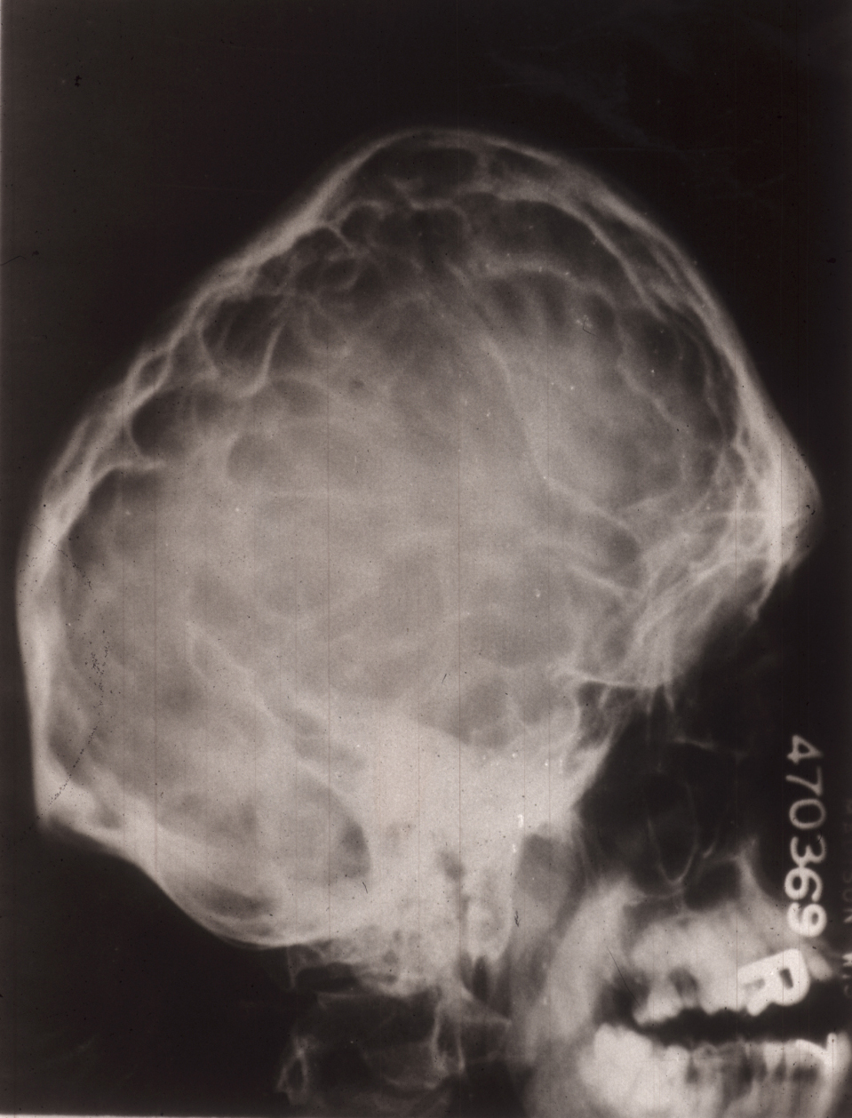 Skull X-ray of adult with Crouzon Syndrome