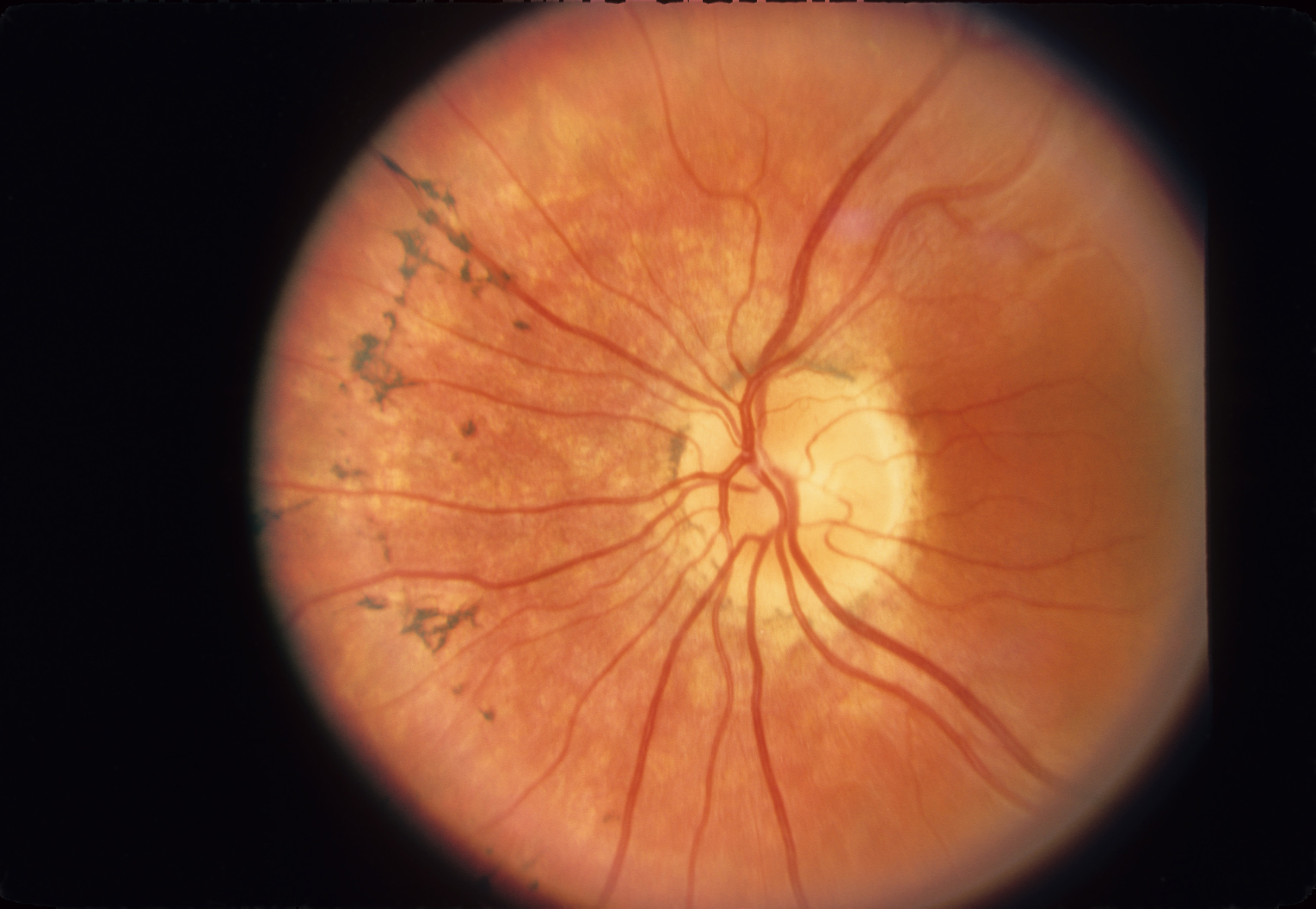 Retinitis Definition What Is