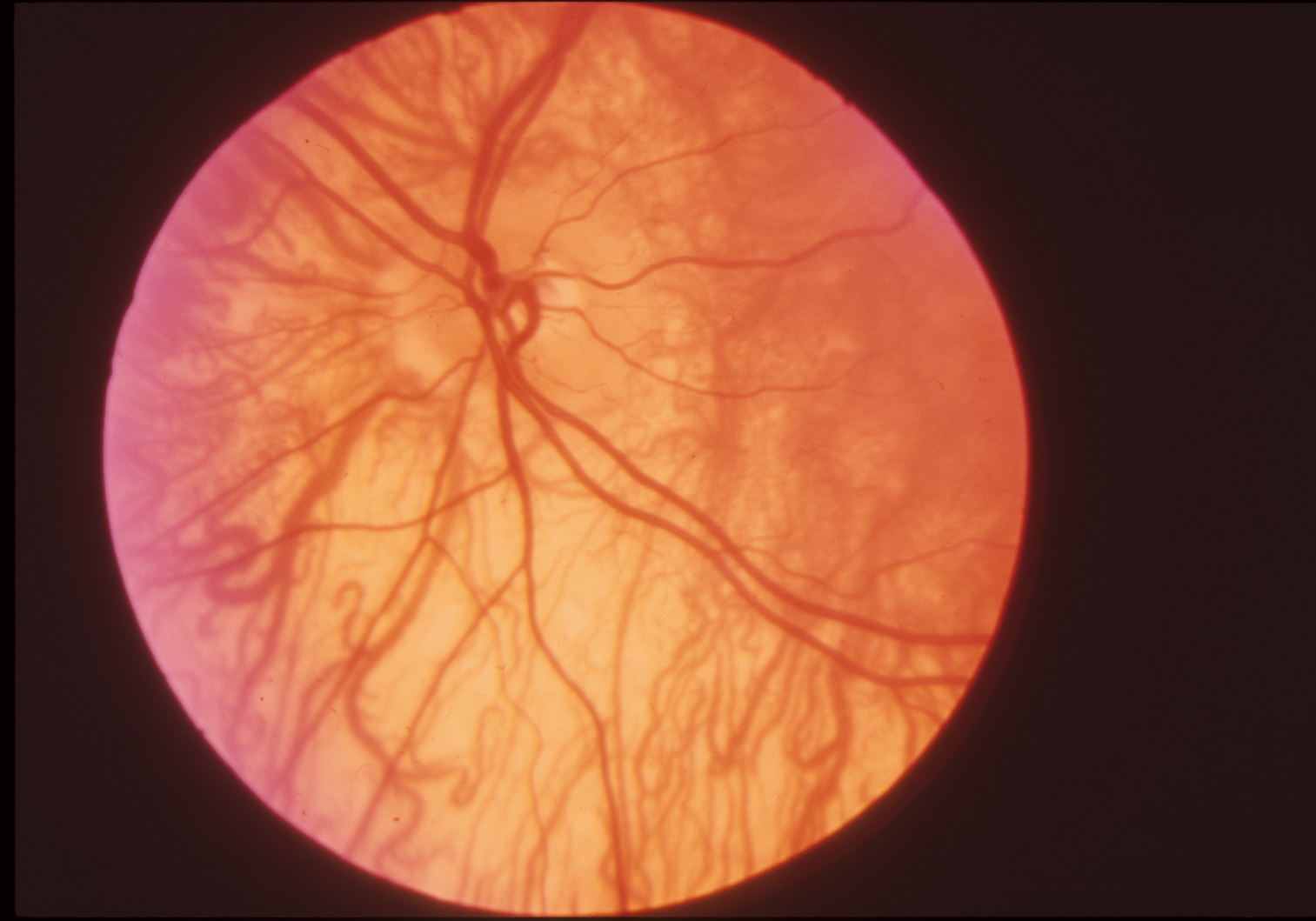 Fundus in type IA oculocutaneous albinism