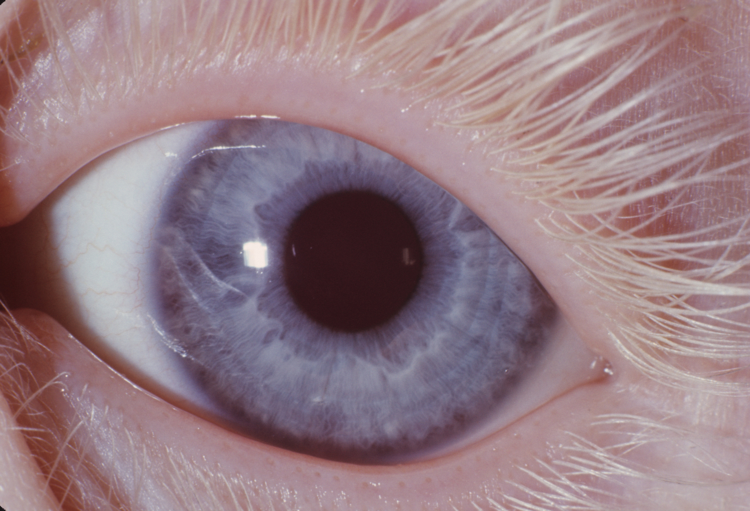 Eye in type IA oculocutaneous albinism