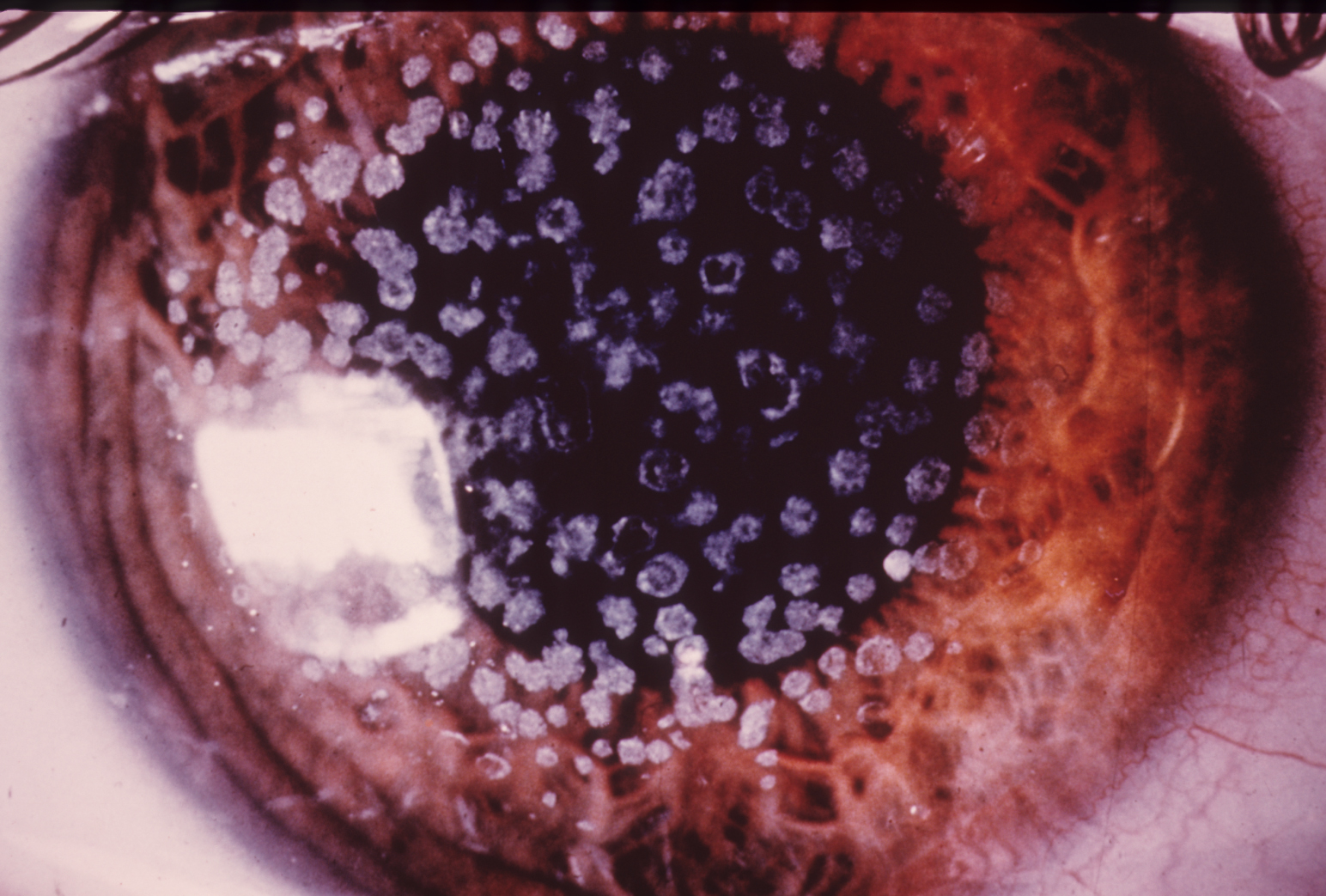 Granular dystrophy of the cornea