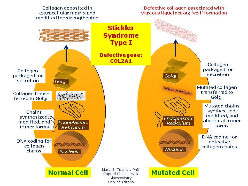 stickler syndrome, type i | hereditary ocular diseases, Cephalic Vein